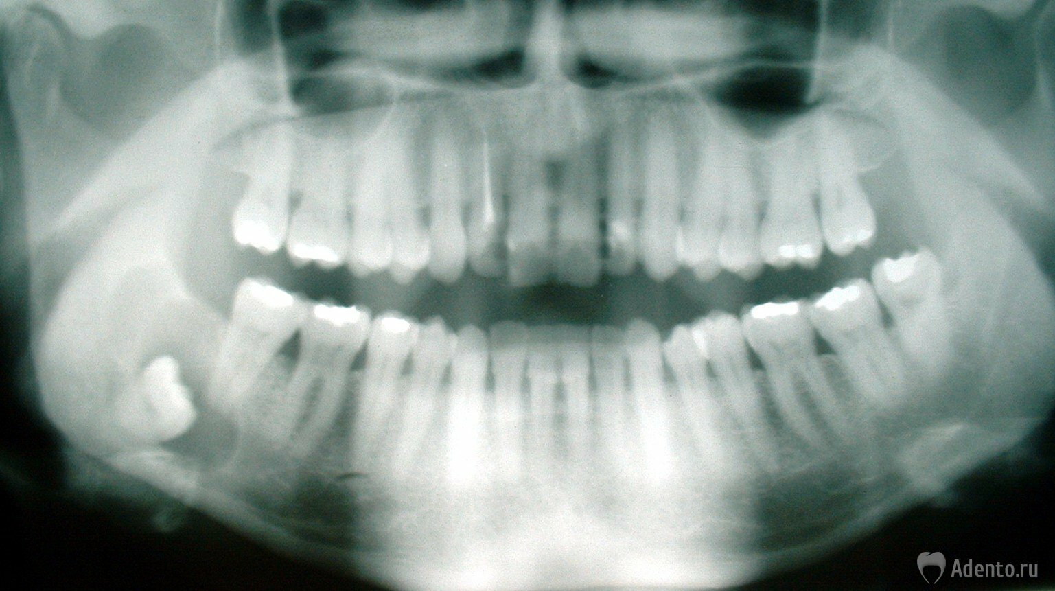 Киста на зубе психосоматика