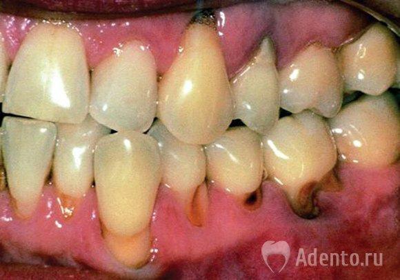 Что делать если болит зуб кариеса