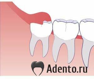 Болит между зубов