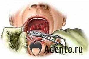 Остатки от зуба остались в десне 168