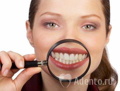 Отбелить зубы в кредит