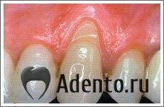 Оголяются шейки зубов лечение народными средствами