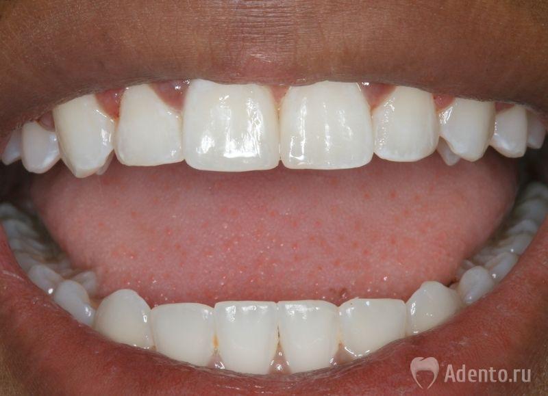 Зубы человека - это
