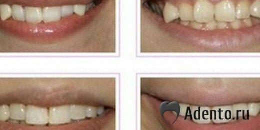 самые длинные зубы у человека в мире фото