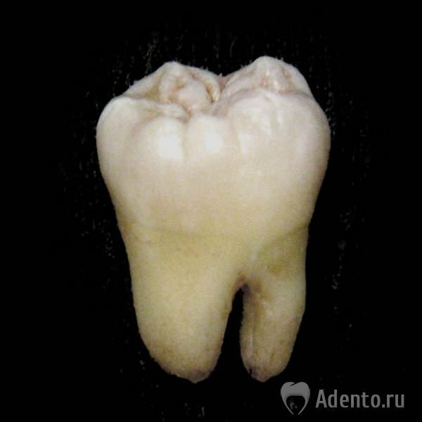 Зуб I