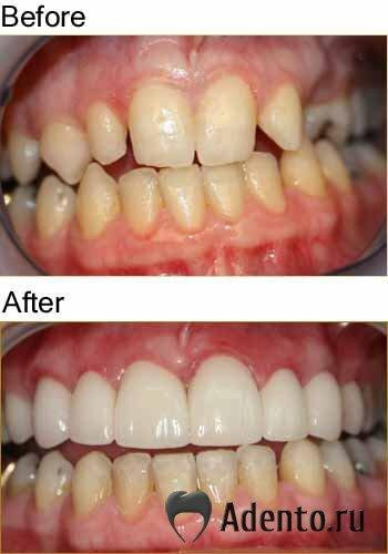 сколько стоят виниры на передние зубы