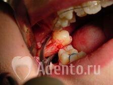 Что делать когда болит после удаления зуба