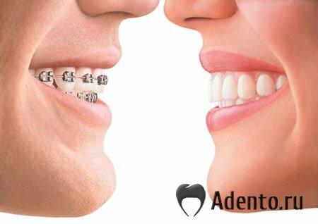 Очень кривые зубы у детей