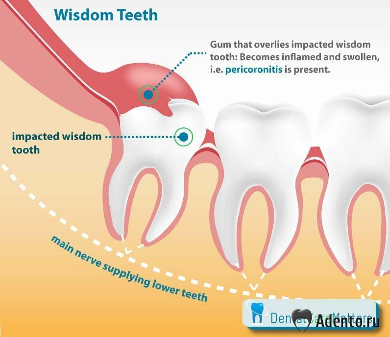 растет зуб мудрости запах изо рта