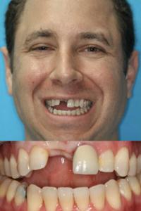 Выпали зубы что делать в домашних условиях