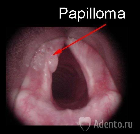 Что значит папилломавирус и как лечить 34
