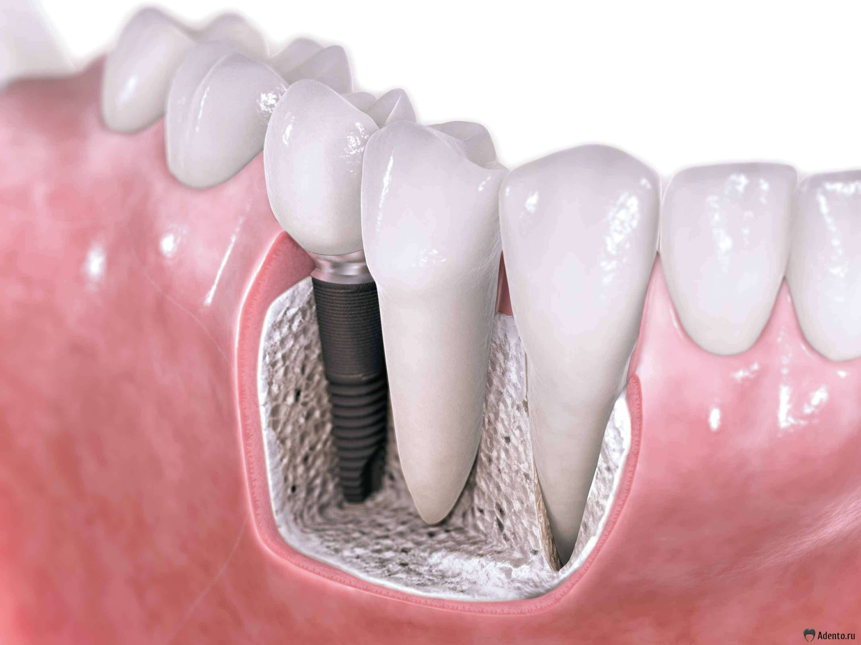 Зуб I фото