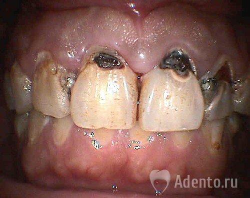 Что делать если кариес на зубах